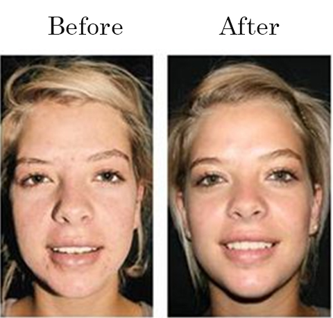Filorga Glykopeel Anti Aging